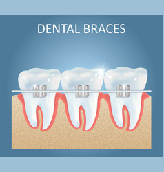 Dental braces medical poster design vector