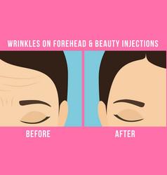 Cosmetic procedures botox vector