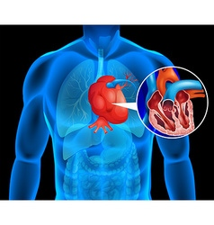 Human heart with cancer vector