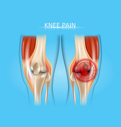 Knee pain realistic anatomical vector