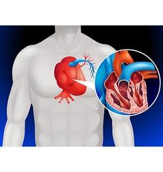 Heart disease diagram in detail vector image vector image