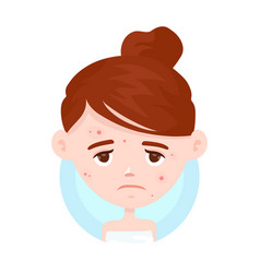 Unhappy teen girl struggling acne vector