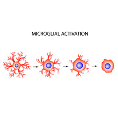 Activation microglia neuron nerve cell vector