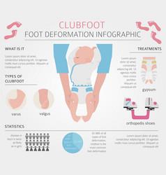 Foot deformation medical desease infographic vector