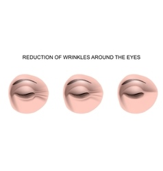 wrinkles around the eyes vector image