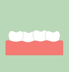 Crowding teeth malocclusion vector