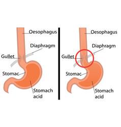 Gastroesophageal reflux desease diagram vector