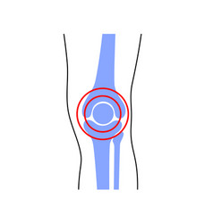 Knee joint pain vector