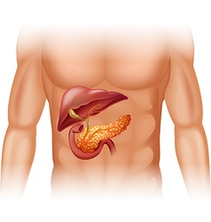 Pancreas cancer diagram in detail vector image