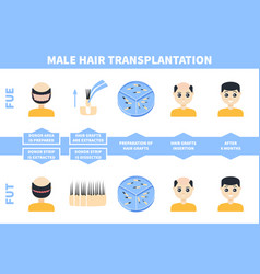 Male hair tranplantation with fue fut methods vector