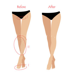 woman epilation or depilation concept - legs and vector image