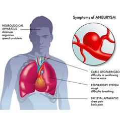 aneurysm symptoms vector image