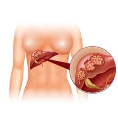 Liver cancer diagram in detail vector image