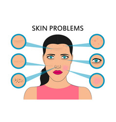 Female face skin problems vector