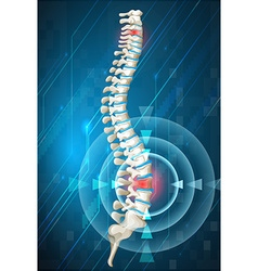 Human spine showing back pain vector