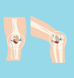 Damaged human knee joint set design vector