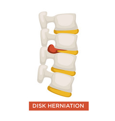 Disk herniation spine disease bone inflammation vector