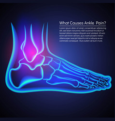 A broken ankle x-ray anatomy ankle pain vector