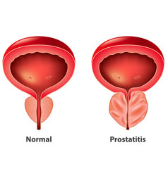 prostatitis normal and inflamed prostate isolated vector image
