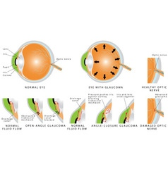 Glaucoma vector image