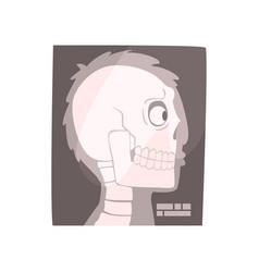 X ray image of a human skull cartoon vector