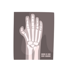x ray image of human hand cartoon vector image