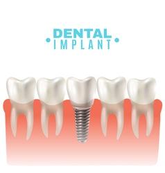 Dental implant model side view poster vector