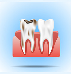 Enamel caries infection and health tooth vector