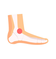ankle joint pain cartoon vector image
