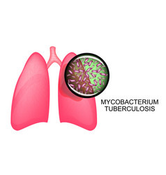 lungs of tb patients koha vector image