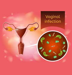 Vaginal infection realistic concept vector