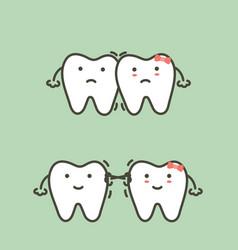 Crowding teeth - malocclusion vector