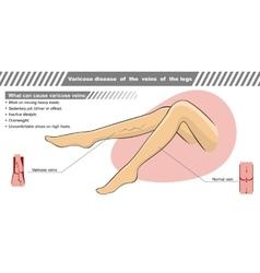 A varicose illness of veins vector