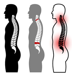 human spine silhouettes vector image