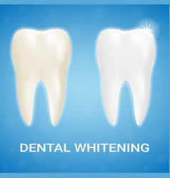 Tooth veneer teeth whitening whitening vector