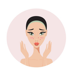 young beautiful woman with skin problems and acne vector image vector image