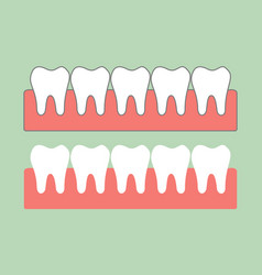 healthy teeth on gum for dental care vector image