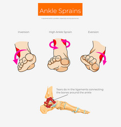 Types ankle sprain scheme vector