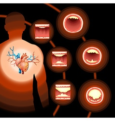 Heart cholesterol in human body vector image vector image