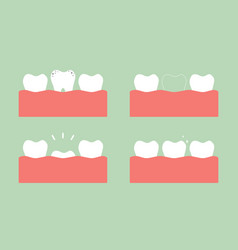 Step of caries to first teeth vector