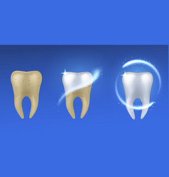 whitening tooth realistic teeth before and after vector image