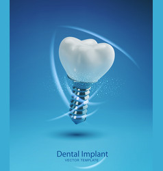 template with realistic 3d prosthesis dental vector image