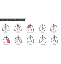 Types of tuberculosis silhouette medical i vector