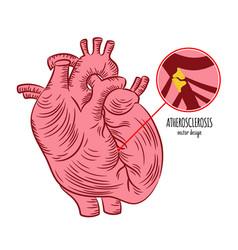 Atherosclerosis chronic disease medicine education vector