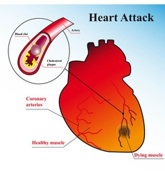 schematic explanation of the process of heart atta vector image