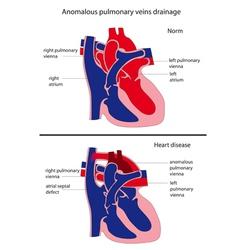 anomalous pulmonary venous drainage heart disease vector image