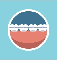Tooth braces vector
