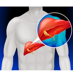 Liver cancer diagram in detail vector image vector image