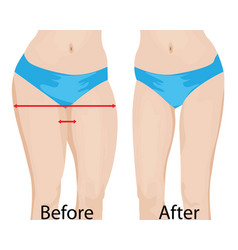 Fat and slim girls hips before and after vector