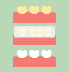 Step of usage teeth whitening strip vector